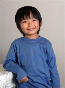 加藤清史郎、痩せすぎ、頬黒い、あざ